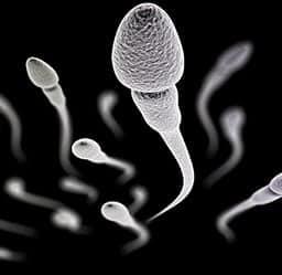 Spermiogram ZADARMO